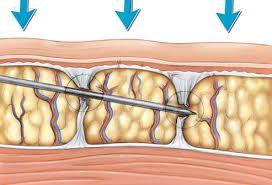 subcision celulitis